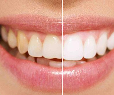 Denti e macchie