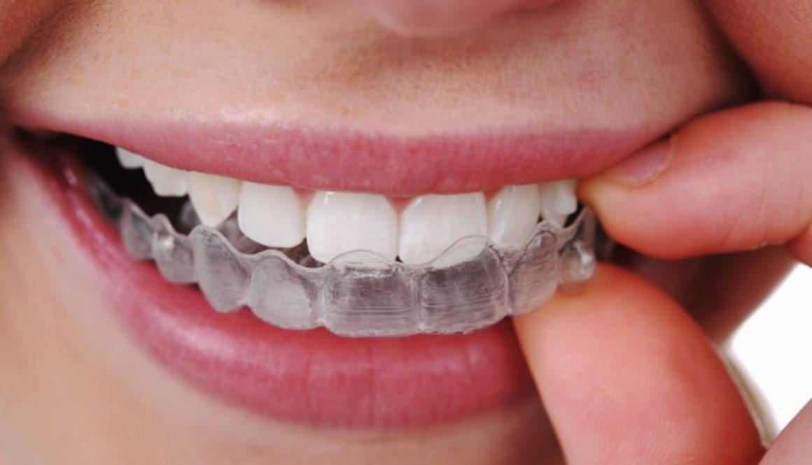 denti apparecchio